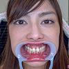 【Tooth fetish】 I observed the teeth of Mr. Shirasu Saki! [Urushi Saki]