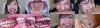 【特典動画付】卯水咲流の歯と噛みつきシリーズ1~2まとめてDL