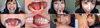 [哇, 獎金視頻書 2! : 與您的真正的牙齒和叮咬系列1-2 一次 DL 走