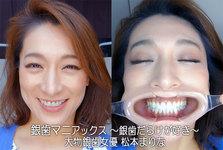 銀歯マニアックス ~銀歯だらけが好き~ 大物銀歯女優 松本まりな