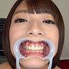 [Tooth fetish] Abe Yoshino みくち Nya he's observed the teeth!