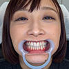 [Dental fetish] was watching you and Ayumi-CHAN's teeth!