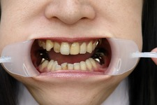 Love teeth pictures vol 009
