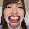 【歯フェチ】碧しのちゃんの歯を観察しました!